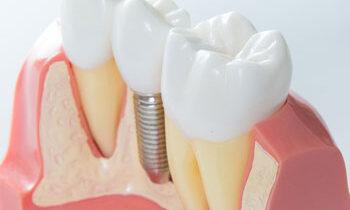 implant-restoration